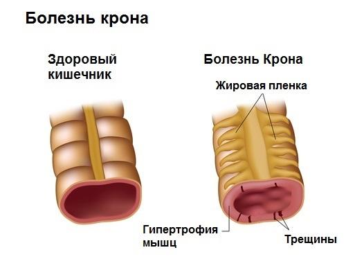 Что делать, если болит живот в области пупка и ниже. Причины и как лечить у ребенка, взрослого, при беременности