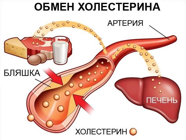 Таблица нормы холестерина по возрасту у женщин. Как нормализовать, понизить уровень холестерина в крови