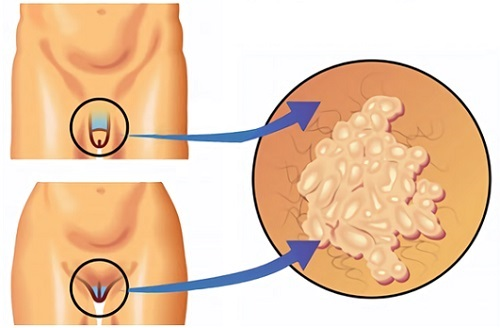 Препарат Трихопол: состав, действие. Особенности применения препарата в гинекологии. Противопоказания