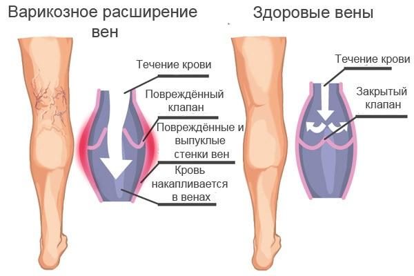 Отекают ноги – причины у женщин, как лечить, одна или обе, при беременности сильных болях, вечером, утром, от сидячей работы. Лечение