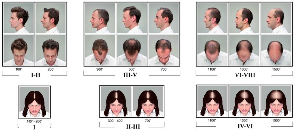 Андрогенная алопеция у женщин. Симптомы, причины, лечение, уход за волосами