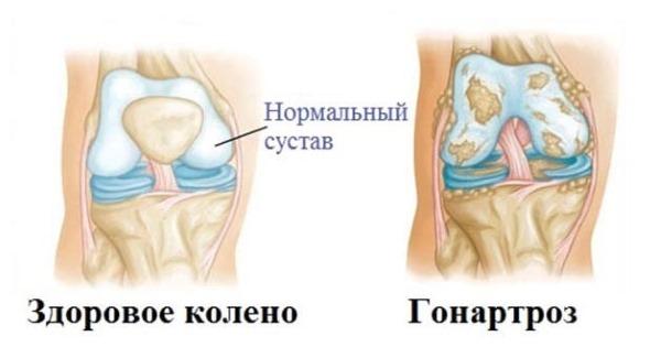 Болит колено при ходьбе с внутренней стороны чем лечить