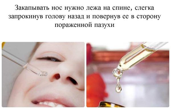 Диоксидин. Инструкция по применению в ухо, нос, для промывания горла, ингаляций, компресса. Как разводить раствор взрослым и детям, в ампулах, аналоги препарата