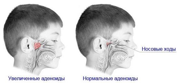 Промывания носа Долфином для детей и взрослых. Инструкция по применению, регулярность процедур, цена, отзывы
