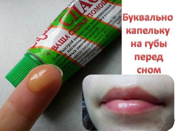 Как лечить обветренные губы: лечебные мази, кремы, рецепты масок, аптечные препараты, витамины для кожи губ
