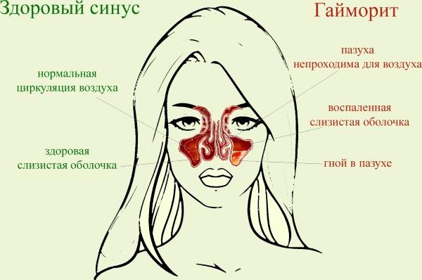 Раствор для промывания носа при насморке, гайморите, заложенности носа. Рецепты для детей, взрослых, при беременности