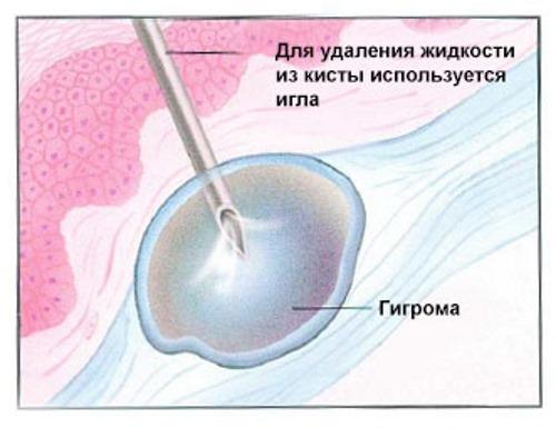 Как лечить шишку на кисти руки под кожей, как кость. Что делать, если растет, мягкая или твердая гигрома