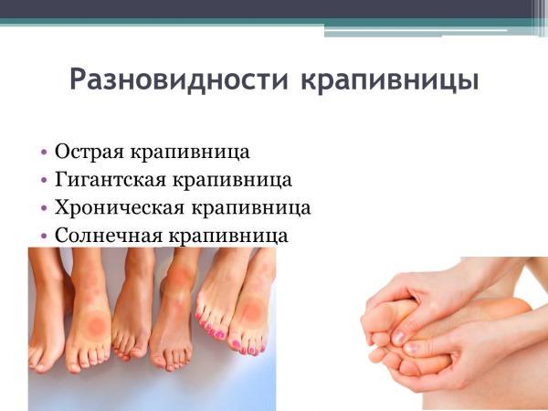 Сухая кожа на ногах. Причины сухости, зуда, шелушения и трещин. Лечение и уход за ногами в домашних условиях