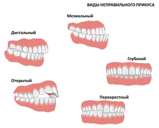Заеды в уголках рта: причины и лечение у детей и взрослых. Мази, витамины, народные средства от трещин