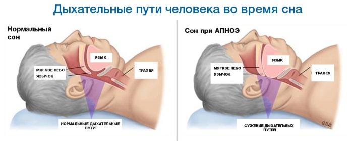 Фенистил в каплях. Инструкция по применению для новорожденных, детей, взрослых, при беременности. Дозировка, противопоказания, побочные эффекты, аналоги
