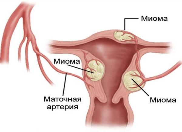 Гормональная терапия при климаксе препараты и схемы их приема противопоказания