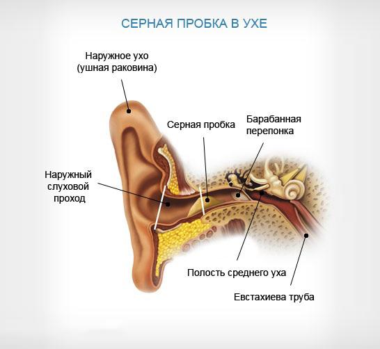 Как избавиться от пробки в ухе у ребенка и взрослого с помощью перекиси водорода, народными средствами, капли и промывания