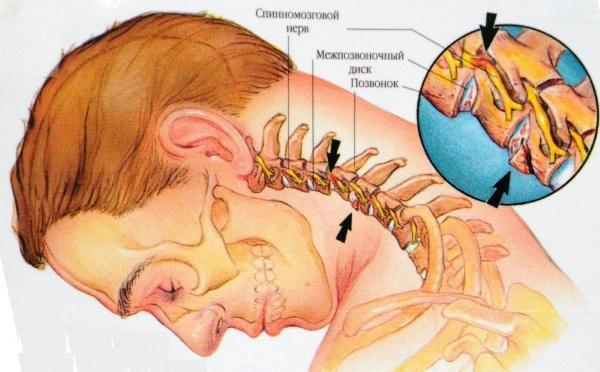 Кружится голова и слабость. Причины у мужчин, женщин и детей. Как лечить головокружение медикаментами и народными средствами в домашних условиях