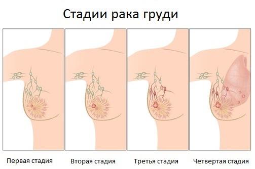 Мастопатия молочной железы - что это такое, причины, симптомы и признаки, последствия. Лечение народными средствами и препаратами