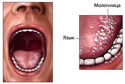 Молочница у младенца во рту лечение