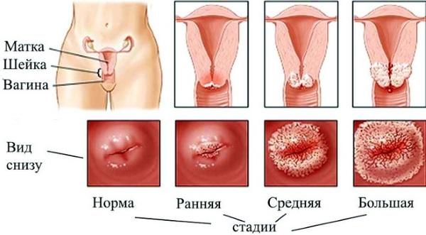 Наботовы кисты шейки матки. Что это такое, причины появления, симптомы, как лечить, а когда нужно удалять