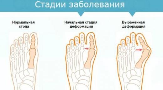 Шишка на пальце ноги. Лечение народными средствами артрита в домашних условиях: мази, кремы, рецепты народной медицины