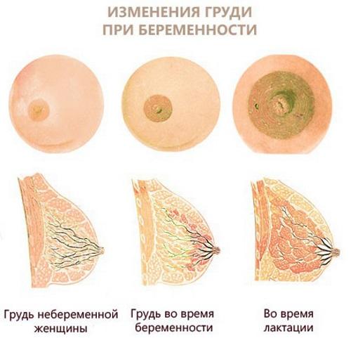 Выделения из грудных желез у женщин при надавливании желтого, белого, зеленого цвета. Причины перед месячными, во время беременности, при климаксе