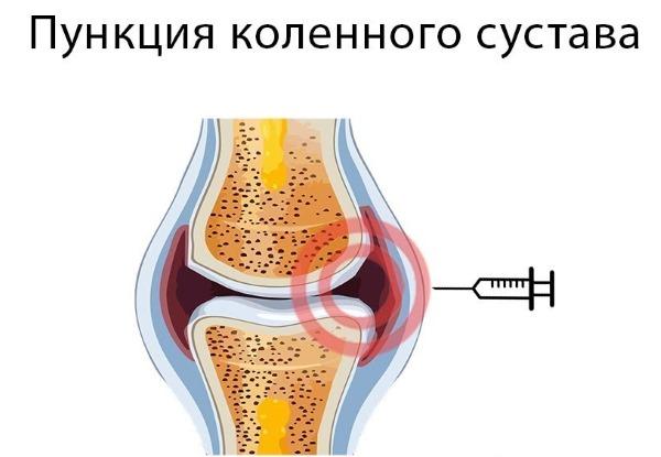 Боль и хруст в колене при приседании, ходьбе, сгибании, вставании, лечение народными средствами