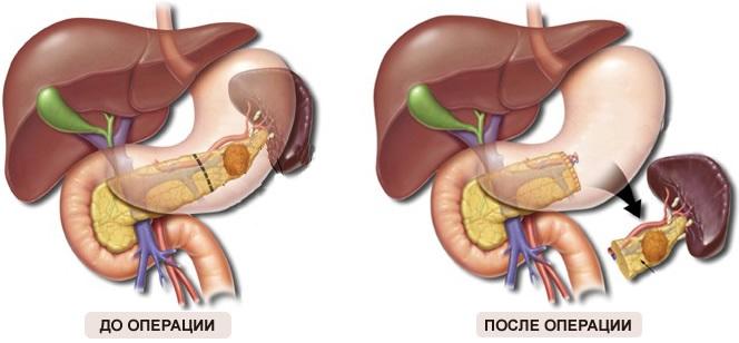 Диффузные изменения поджелудочной железы по типу липоматоза. Что это такое, лечение, диета, народные средства