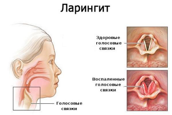 Доктор Мом мазь. Инструкция по применению для детей при кашле, насморке, женщинам при беременности, состав, аналоги, цена