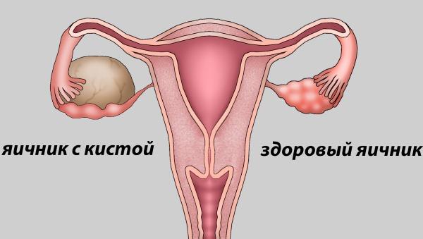 Retroflexio матка (загиб матки). Что значит, как забеременеть, причины, симптомы, лечение