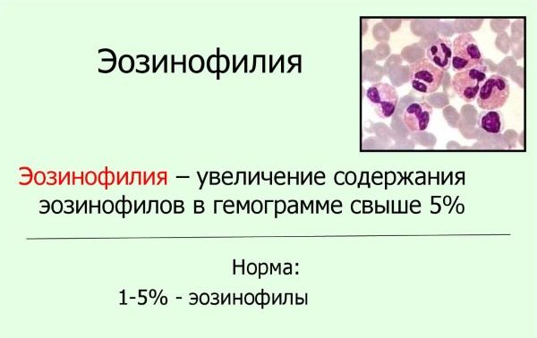 Эозинофилы повышены у взрослого. Что это, причины, симптомы, анализы и лечение