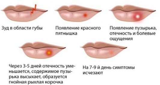 Герпес на губах при беременности в первом, втором, третьем триместре. Лечение народными средствами, зубной пастой,препараты, диета