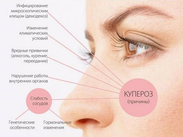 Купероз на лице: фото, причины и лечение, как убрать в домашних условиях. Препараты, кремы, мази в косметологии