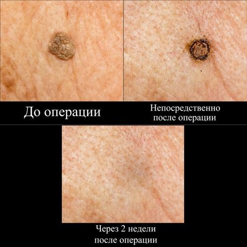 Кератома кожи - симптомы и лечение у взрослых, фото на лице, голове. Себорейная, старческая, сенильная