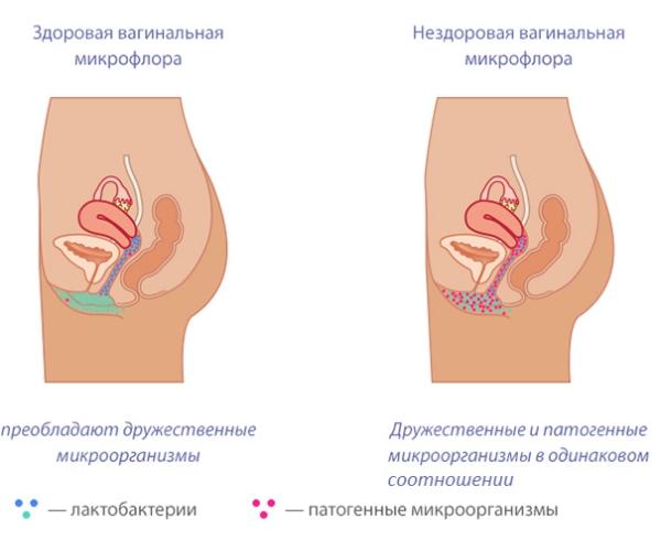 Коричневые выделения без боли и запаха у женщин. Что это, причины и лечение
