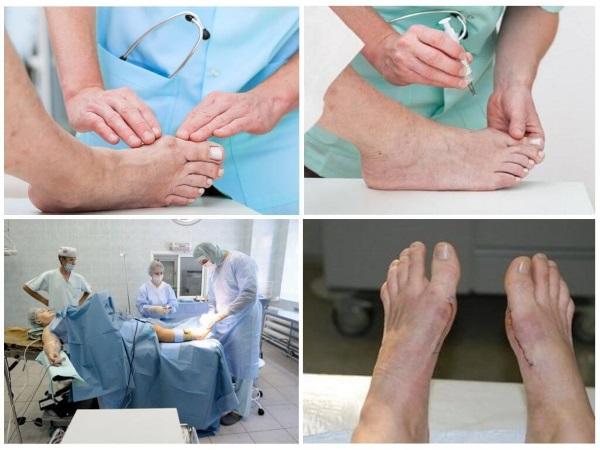 Кость на ноге возле большого пальца. Причины и лечение в домашних условиях. Народные средства, препараты, операция