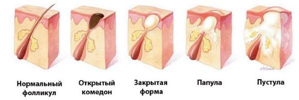 Красные пятна на лице у ребенка, новорожденного. Фото, причины возникновения, чем лечить
