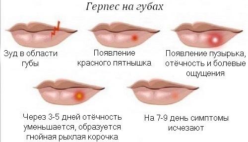 Отек лица. Причины у женщин по утрам, перед месячными, при гормональном сбое, нарушении эндокринной системы. Анализы и лечение