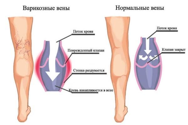 Отек ноги в щиколотке и стопе. Причины и лечение, что делать