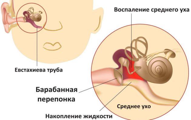 Отит у ребенка - симптомы и лечение в домашних условиях. Препараты, народные средства, лечение по Комаровскому