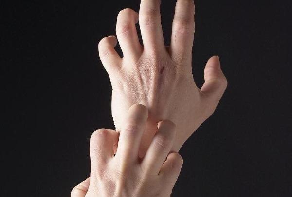 Покраснение рук, причины и лечение