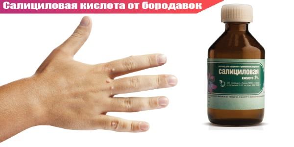 Причины бородавок на руках, лечение салициловой кислотой, чистотелом, чесноком, картошкой, мазями, касторовым маслом