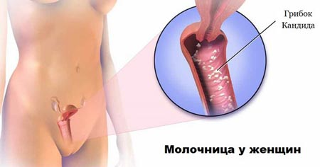 Признаки молочницы у женщин, симптомы. Как выглядит, причины возникновения. Лечение народными средствами и препаратами