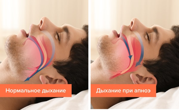 Причины постоянной сонливости и слабости, усталости, общей апатии, сильная головная боль, головокружение и тошнота у женщин