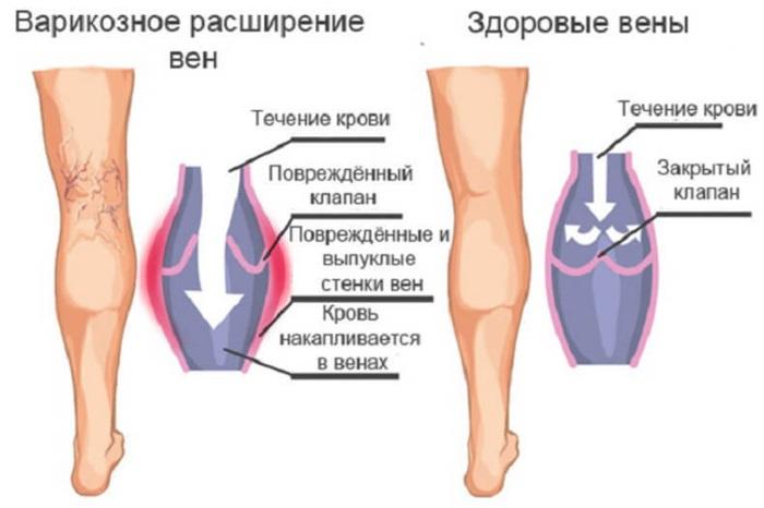 Варикоз вен на ногах: лечение, народные средства 70