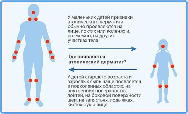 Высыпание на коже у ребенка, красные пятна, крапивница, прыщики с зудом. Причины и лечение в домашних условиях