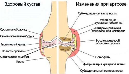 Артроз коленного сустава: симптомы и лечение народными средствами, физическими упражнениями, препараты из аптеки