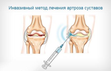 Артроз коленного сустава 1 2 степени лечение