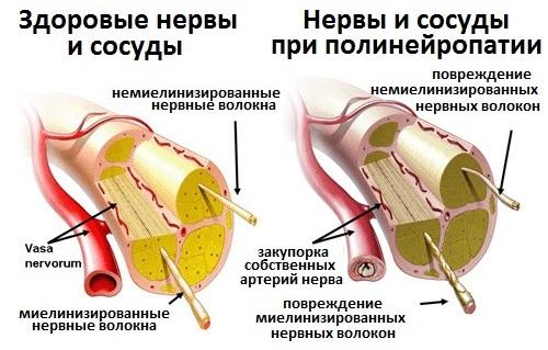 Боль в ногах от колена до стопы спереди, сзади, ноющая, тянущая, резкая. Причины и лечение