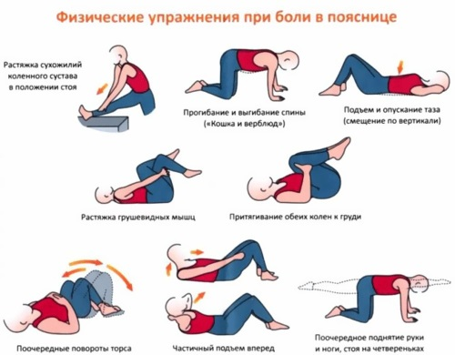 Боль в пояснице. Причины у женщин и мужчин при сидении, после родов, по утрам. Ноющая, тянущая, постоянная, опоясывающая, ночная, больно наклоняться. Лечение