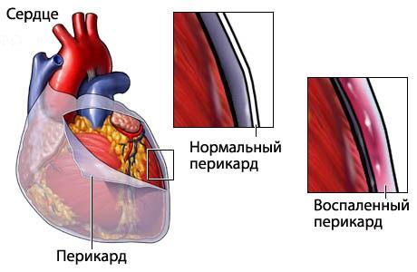 Причины боли в сердце у женщин. Симптомы и лечение. Что делать, к какому врачу обратиться, что принимать