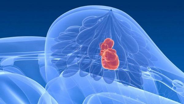 Фиброзно-кистозная мастопатия молочной железы. Что это такое, как лечить, чем опасна при беременности. Признаки, симптомы, фото