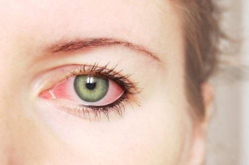 Глазные капли с гиалуроновой кислотой без консервантов. Список названий, инструкция по применению, цены