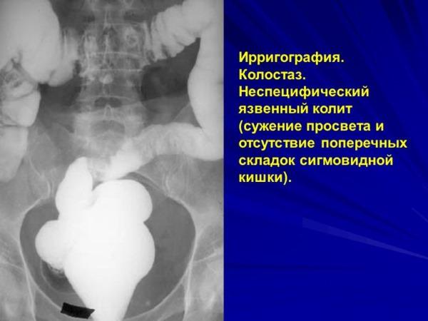 Глицериновые свечи. Инструкция по применению при беременности, после родов, от запора. Цена, отзывы